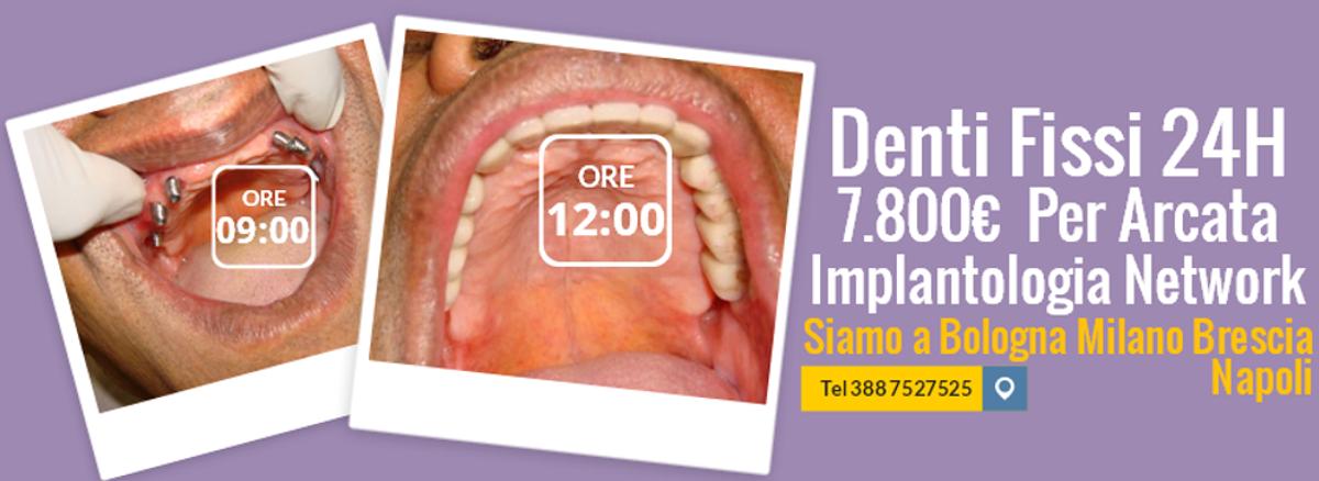 Implantologia Dentale  Prezzi